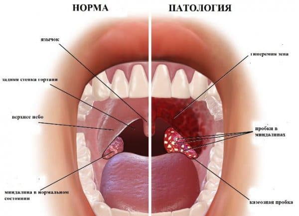 Ангина или острый тонзиллит