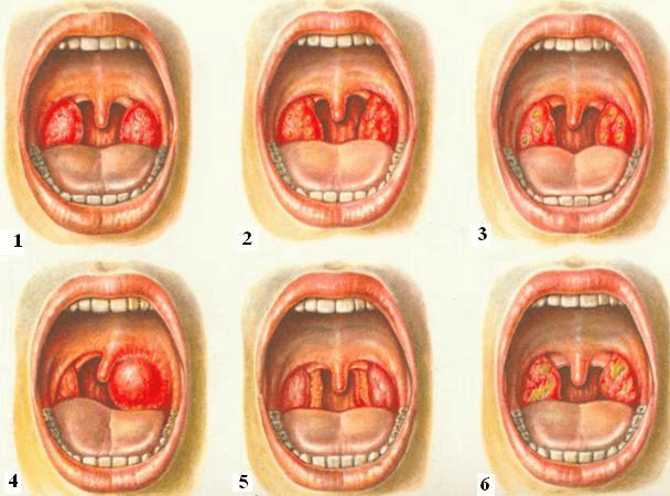 Виды: 1. Катаральная. 2. Фолликулярная. 3. Лакунарная. 4. Флегмонозная (паратонзиллярный абсцесс). 5. Ангина боковых валиков. 6. Ангина Симановского — Плаута — Венсана