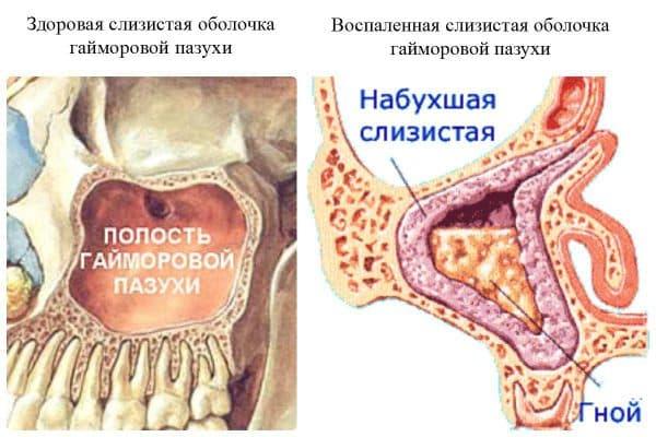 Гайморит здоровая и воспаленная околоносовая пазуха