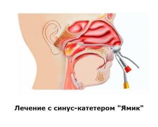 Лечение ЯМИК-методом