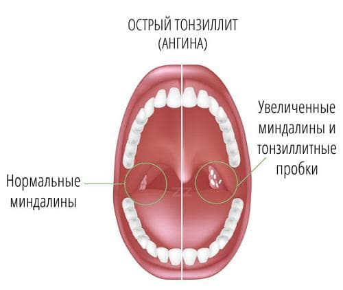 Острый тонзиллит