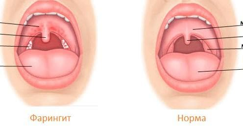 Фарингит как причина першения в горле