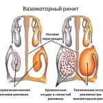 вазомоторный ринит как лечить