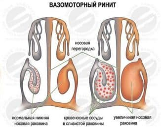 вазомоторный ринит