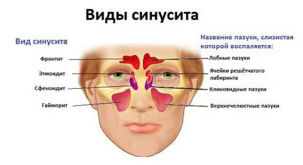 виды синусита