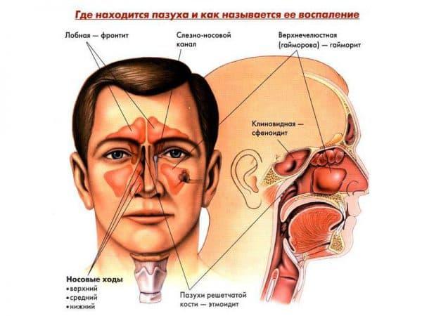 воспаление пазух и возможные заболевания