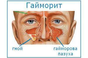 гайморит лечение