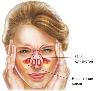 лечение гайморита и общие рекомендации