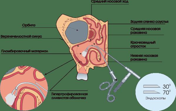операция при гайморите