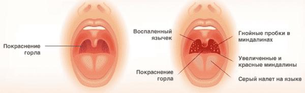 основные признаки ангины