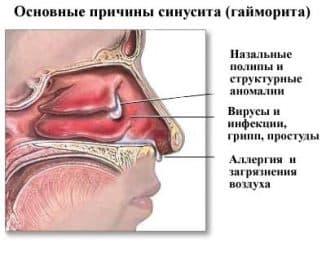 причины возниконовения синусита