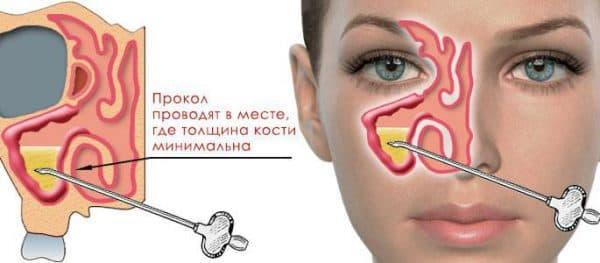 прокол гайморовых пазух при лечении гнойного гайморита