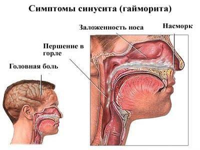 симптомы и признаки гайморита