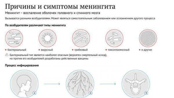 симптомы и причины мененгита