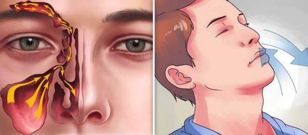 строение пазух носа и циркуляция воздуха