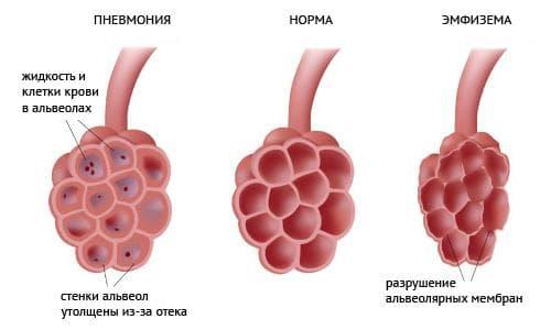 хронический бронхит осложненный пневмонией