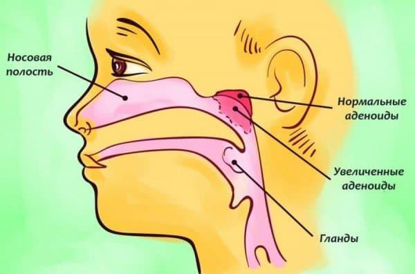 Аденоидит - увеличенные глоточные миндалины