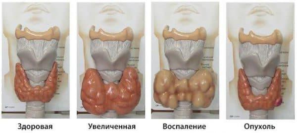 Воспаление щитовидной железы (тиреоидит)