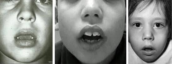 Деформация челюсти при увеличенных аденоидах у детей до 10 лет