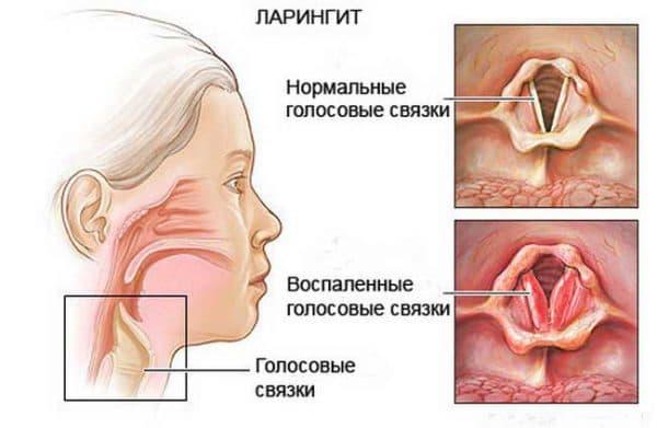 Ларингит как осложнение ангины
