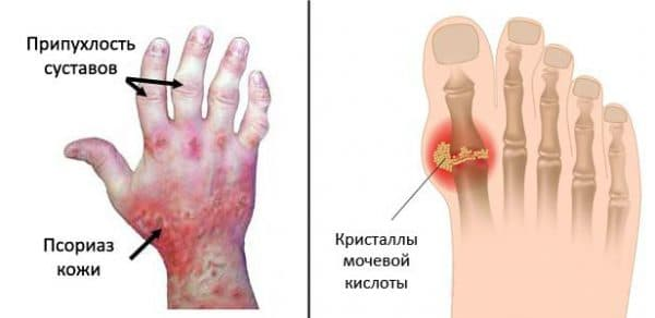 Полиартрит как осложнение ангины