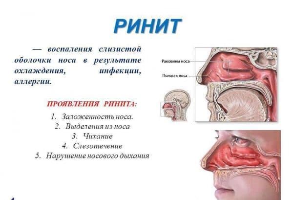 Ринит - медицинское определение насморка
