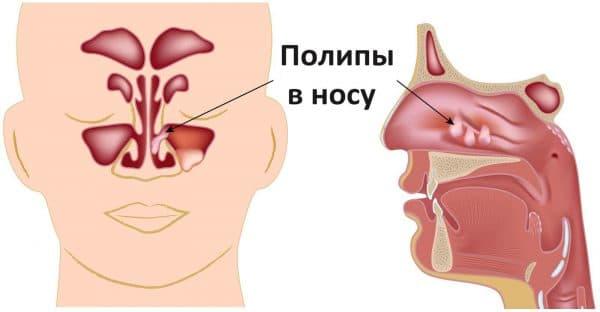 Формирование полипов в носоглотке