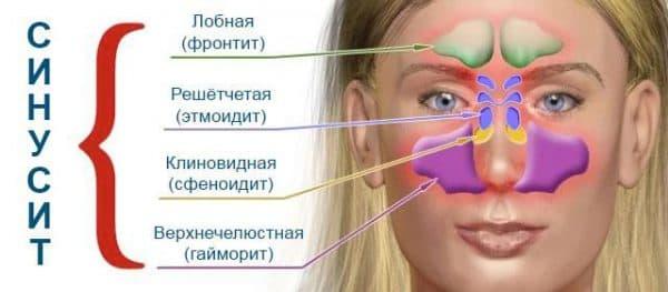 анатомия гайморита
