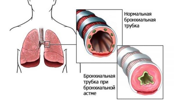 bronxialnaya-astma
