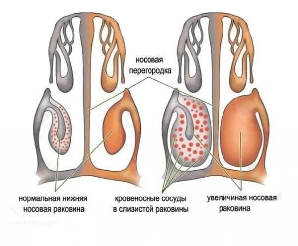 воспалительный процесс в носу