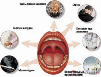 drugie-faktory-zarazheniya-tonzillitom