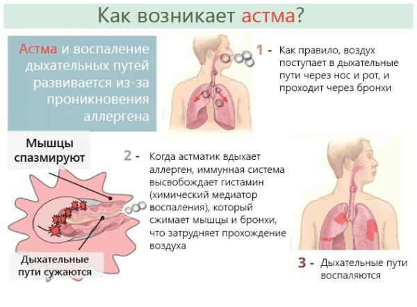 kak-voznikaet-astma