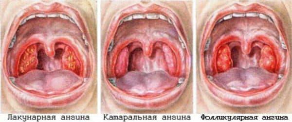 Пример катаральной ангины на фоне других форм