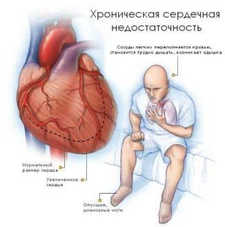 кашель при болезнях сердца