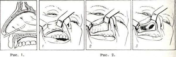 Рис. 1. Положение иглы в полости носа при пункции верхнечелюстной пазухи. Рис. 2. Операция по Колдуэллу — Люку: 1 —разрез по переходной складке преддверия полости рта; 2 — обнажение передней стенки верхнечелюстной пазухи; 3 — верхнечелюстная пазуха вскрыта.