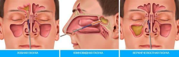 Прокол носа при гайморите - самый эффективный метод лечения