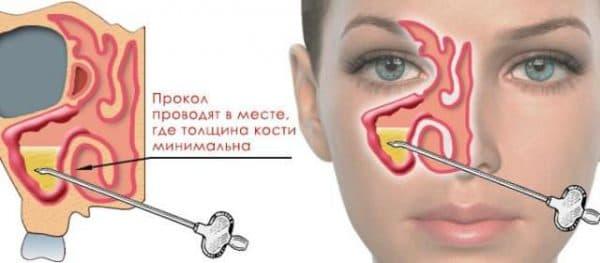 прокол носа при гайморите