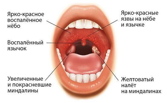 симптомы лакунарной ангины