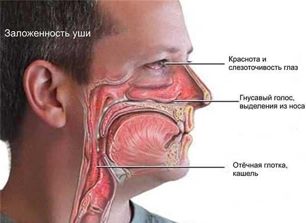сопутствующая симптоматика насморка