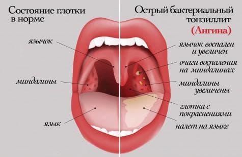 состояние глотки во время ангины
