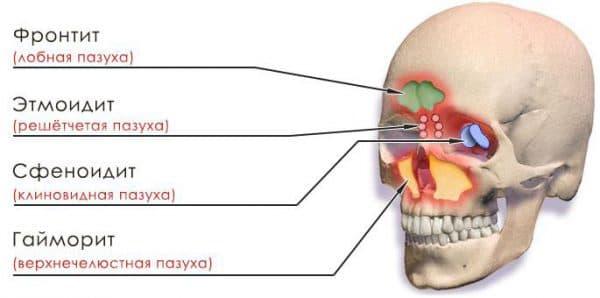 схема видов синусита