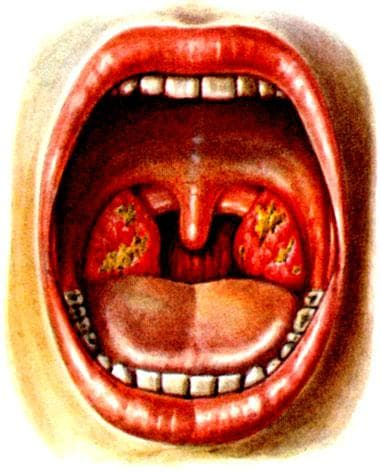 физическое проявление язвенно-некротической ангины