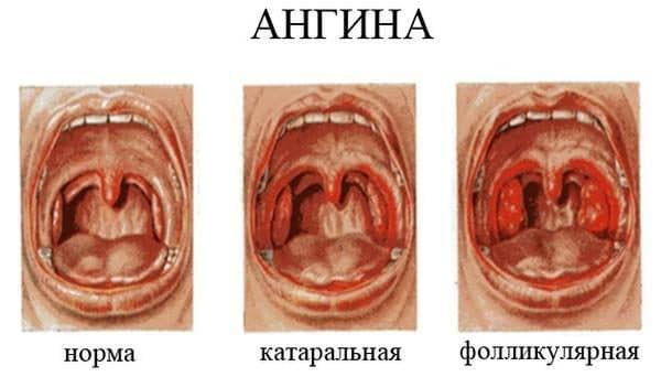 формы воспаления горла