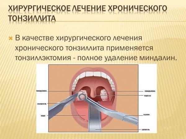 хирургическое удаление миндалин