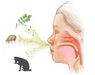 чем лечить аллергический кашель у ребенка
