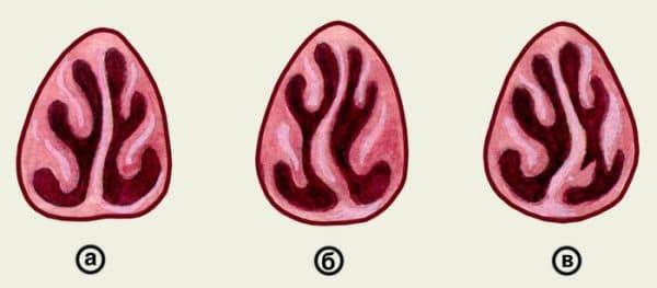 а — легкое искривление перегородки носа; б — S-образное искривление перегородки носа; в — искривление перегородки носа под углом.