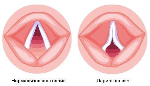 ларингоспазм