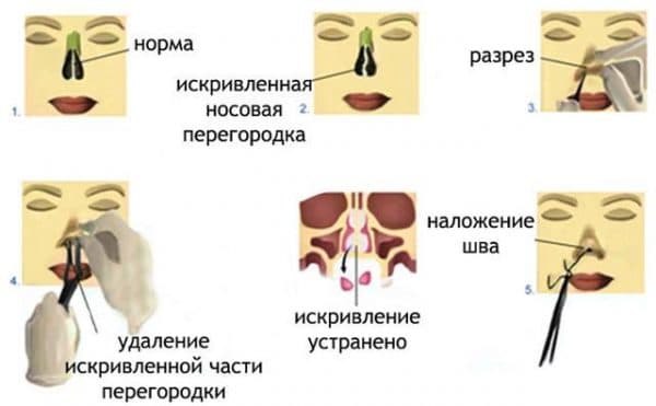 Оперативное лечение искривления носовой перегородки