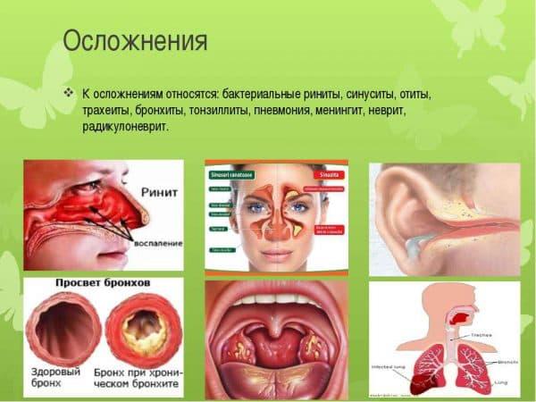Осложнения хронического тонзиллита