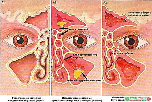 Причиной постоянной заложенности носа может выступать искривление носовой перегородки